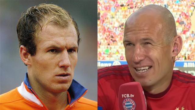 Losing Your Hair Here Are 10 Footballers Who Shaved It