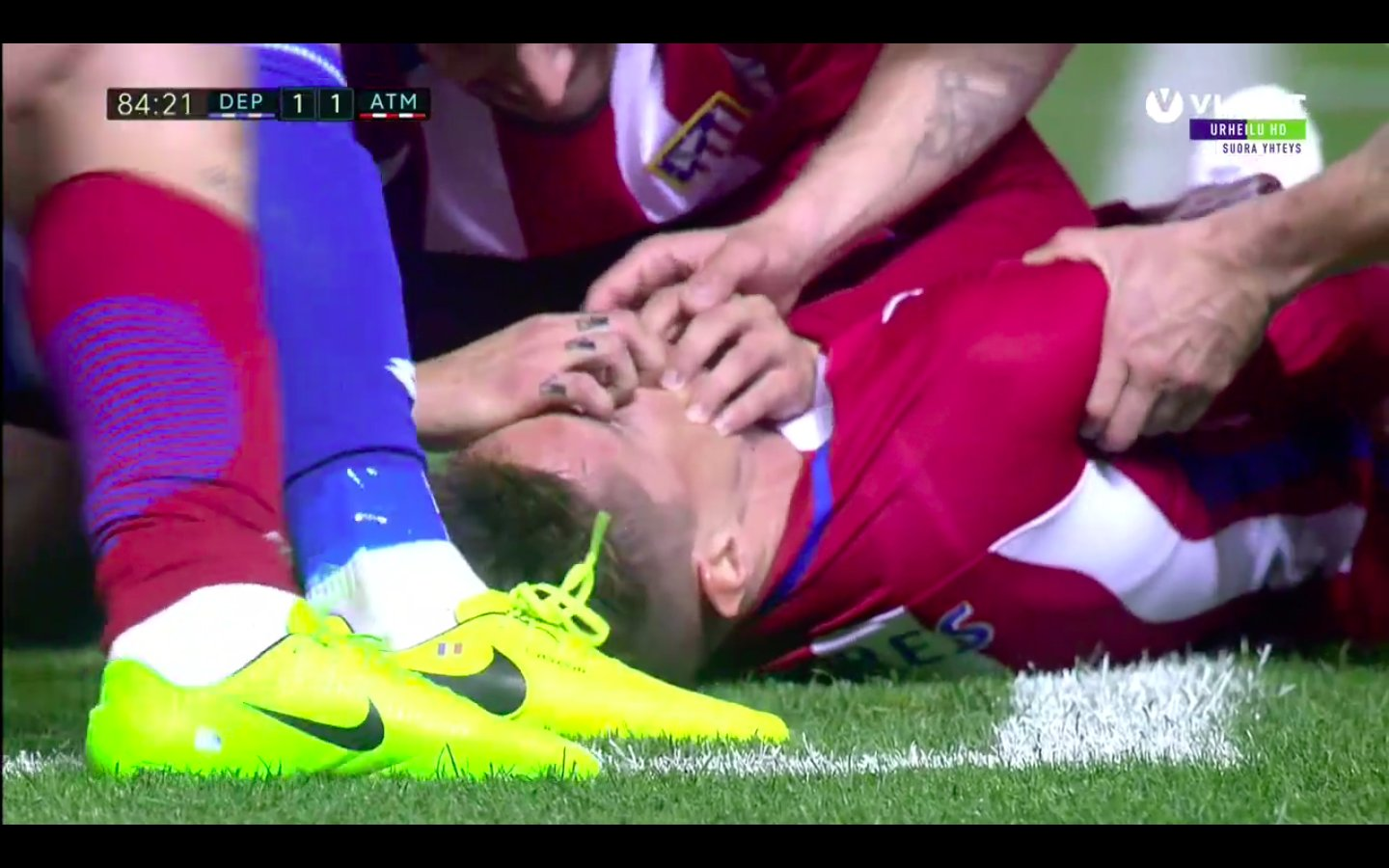 Atletico Madrid ace Fernando Torres suffers horror head injury