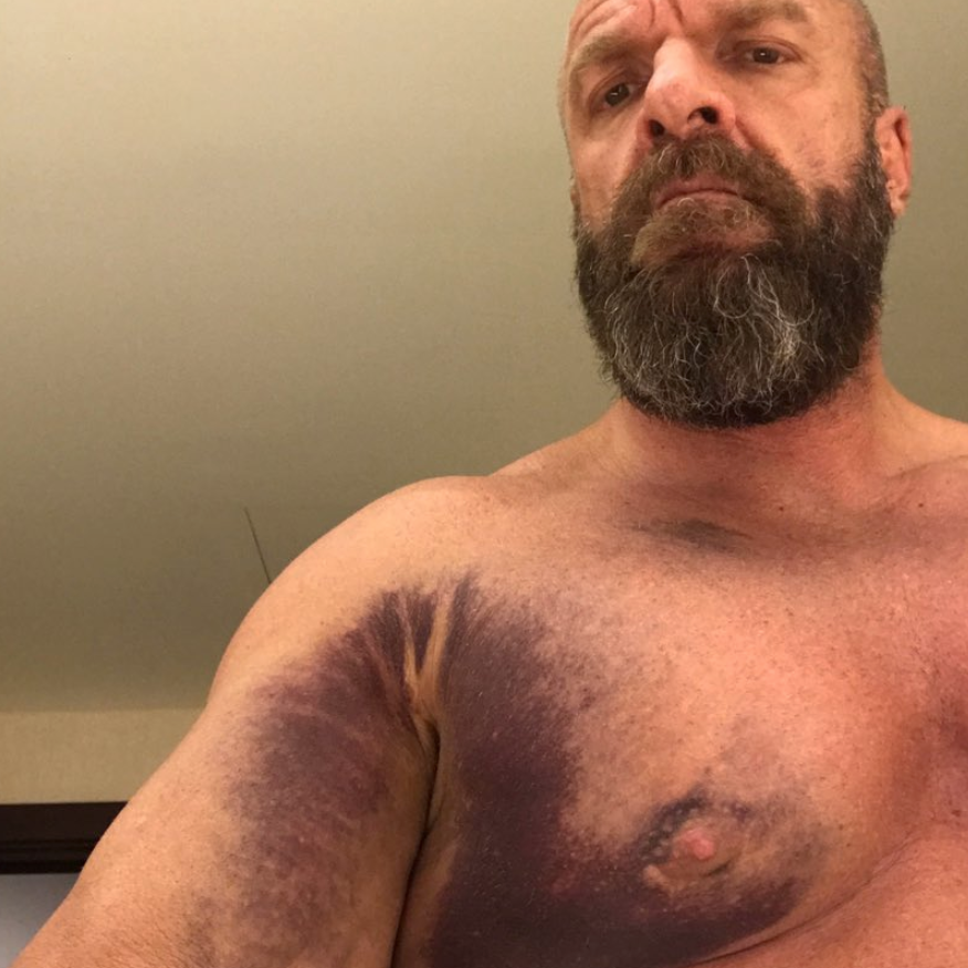 triple h injury